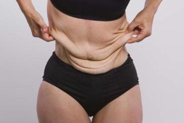 Woman holding skin of waist