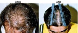 hair regrowth treatment mumbai