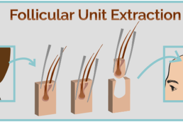 follicular-unit-extraction