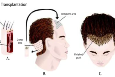 direct hair transplant techniques